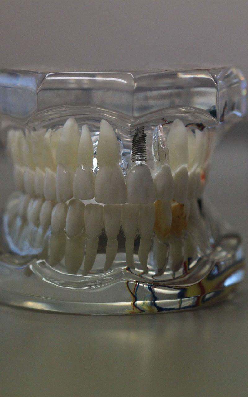 Zła dieta odżywiania się to większe niedobory w jamie ustnej a dodatkowo ich brak